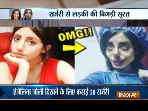 Aaj Ka Viral: Young girl underwent 50 surgeries on her face to look like Angelina Jolie