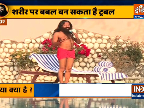 Know effective decoction for hernia from Swami Ramdev