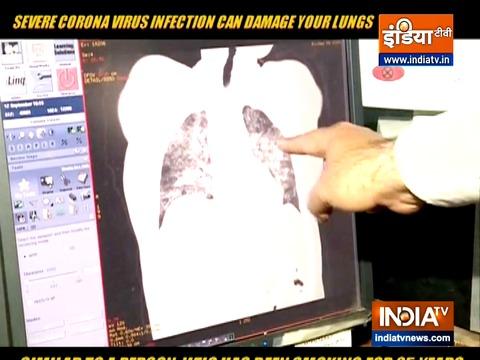 कोरोनावायरस संक्रमण आपके फेफड़ों को नुकसान पहुंचा सकता है