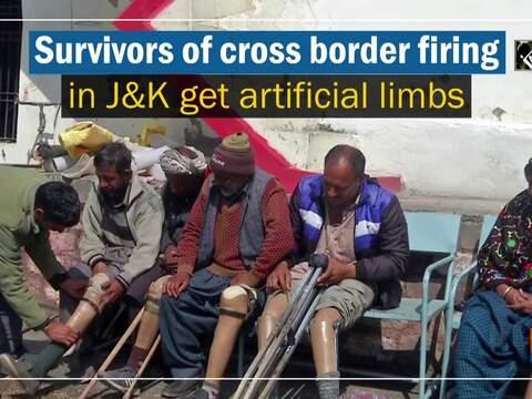 Survivors of cross border firing in JandK get artificial limbs