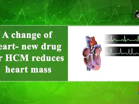 A change of heart- new drug for HCM reduces heart mass