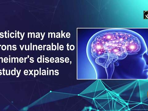 Plasticity may make neurons vulnerable to Alzheimer's disease, study explains
